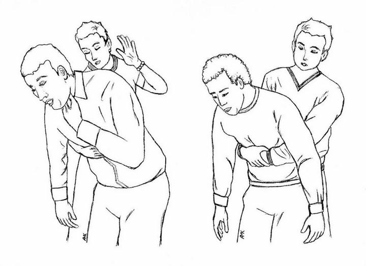 Cách thực hiện nghiệm pháp Heimlich