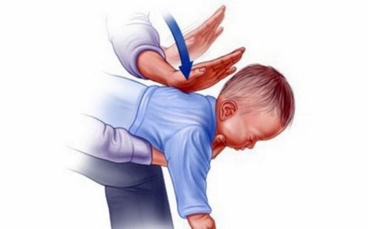 Cách thực hiện nghiệm pháp Heimlich chosơ sinh dưới 1 tuổi